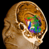 NEW RESEARCH: Brain Tumor PandemicDNA Impacts from Mobile Phones Implicated in New Analysis